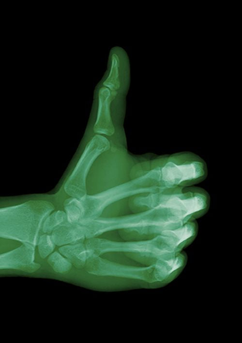 Nick Veasey - Thumbs Up