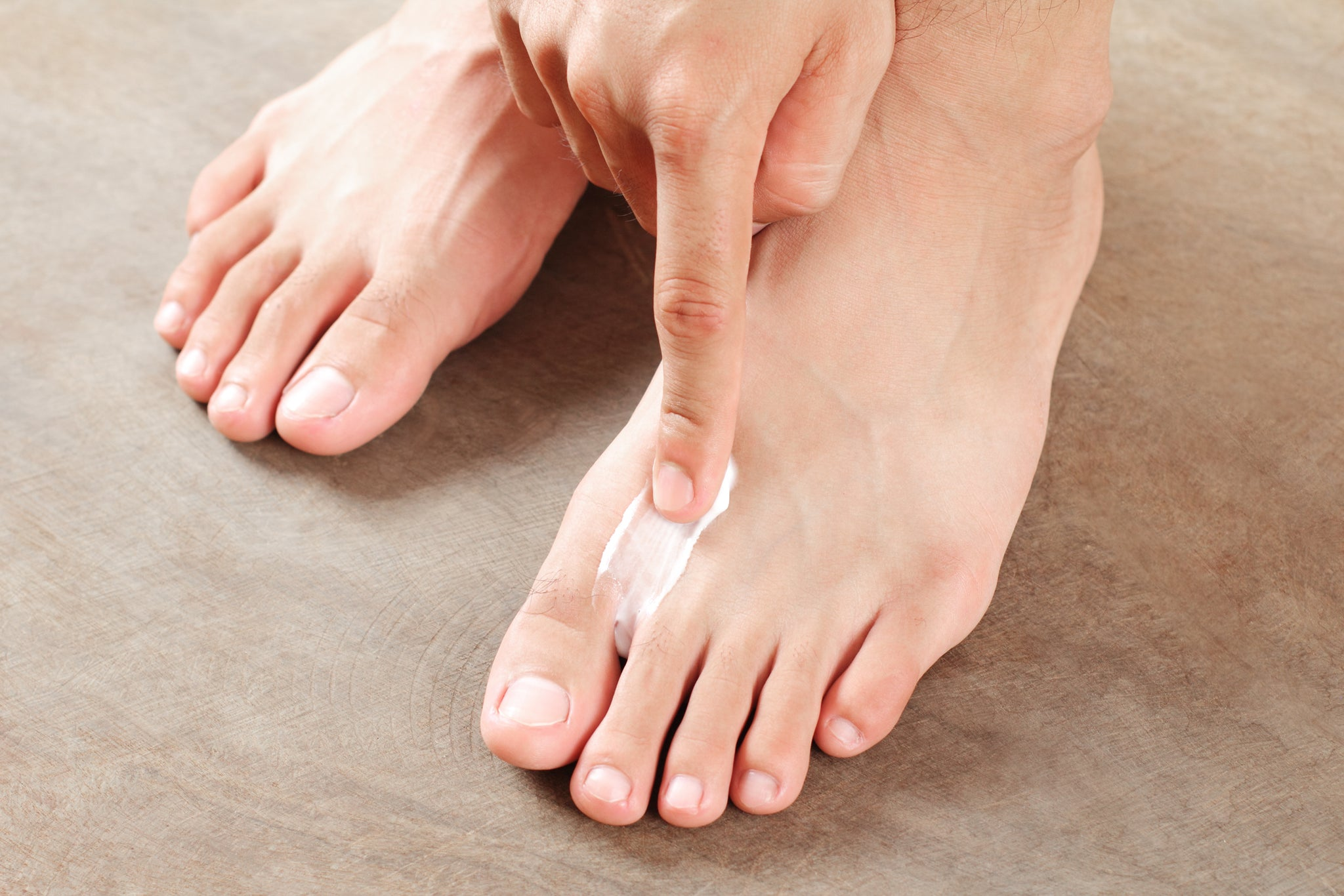 Athlete's Foot Treatments