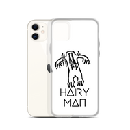 Hairy Man Bigfoot iPhone Case
