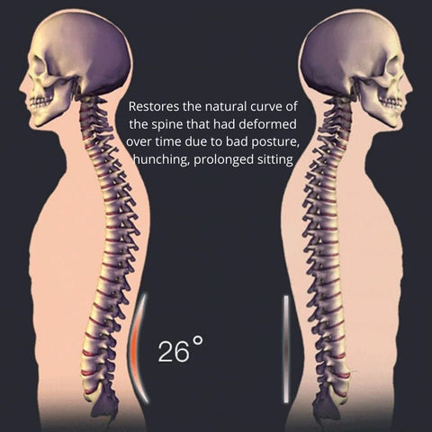 Difference between natural curved spine and deformed spine