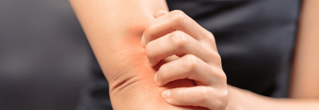 Atopic Dermatitis vs. Eczema: Do You Know the Difference?