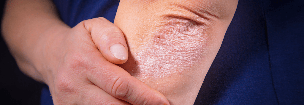 What is The Difference Between Psoriasis and Eczema?