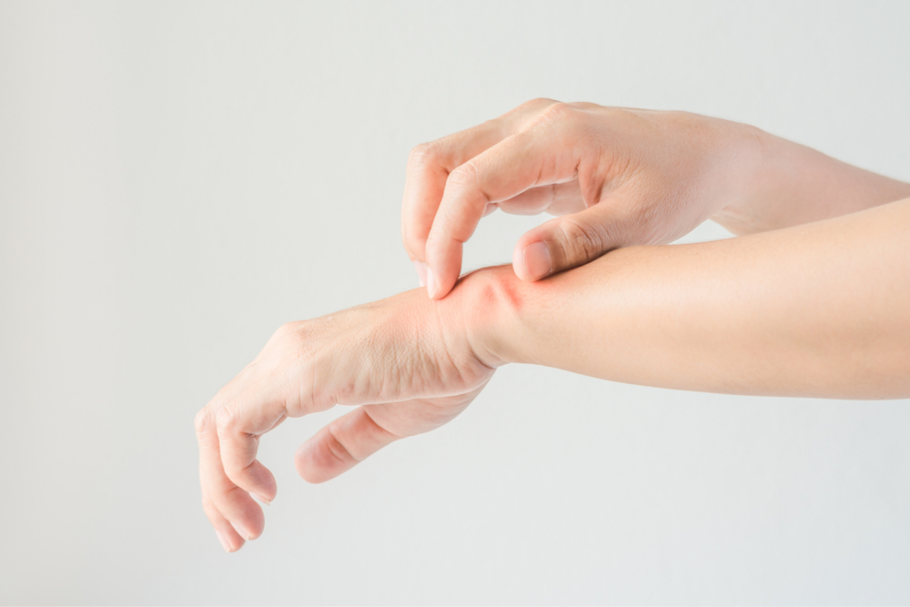 5 Tips to Help You Get a Grip on Hand Eczema