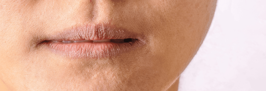Best Treatments for Eczema on Lips