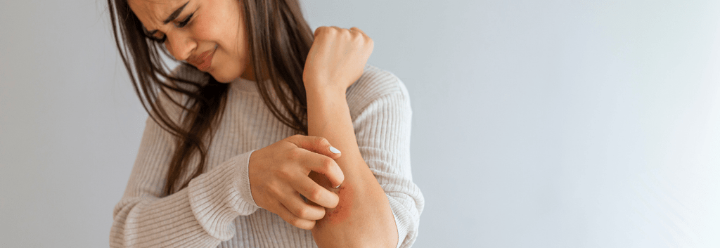 Psoriasis Triggers to Avoid