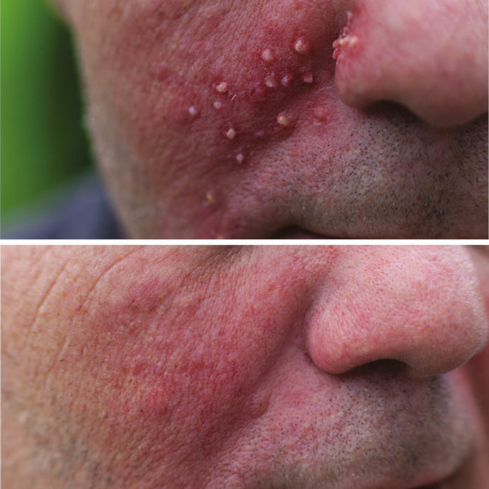 Acne-like skin rash