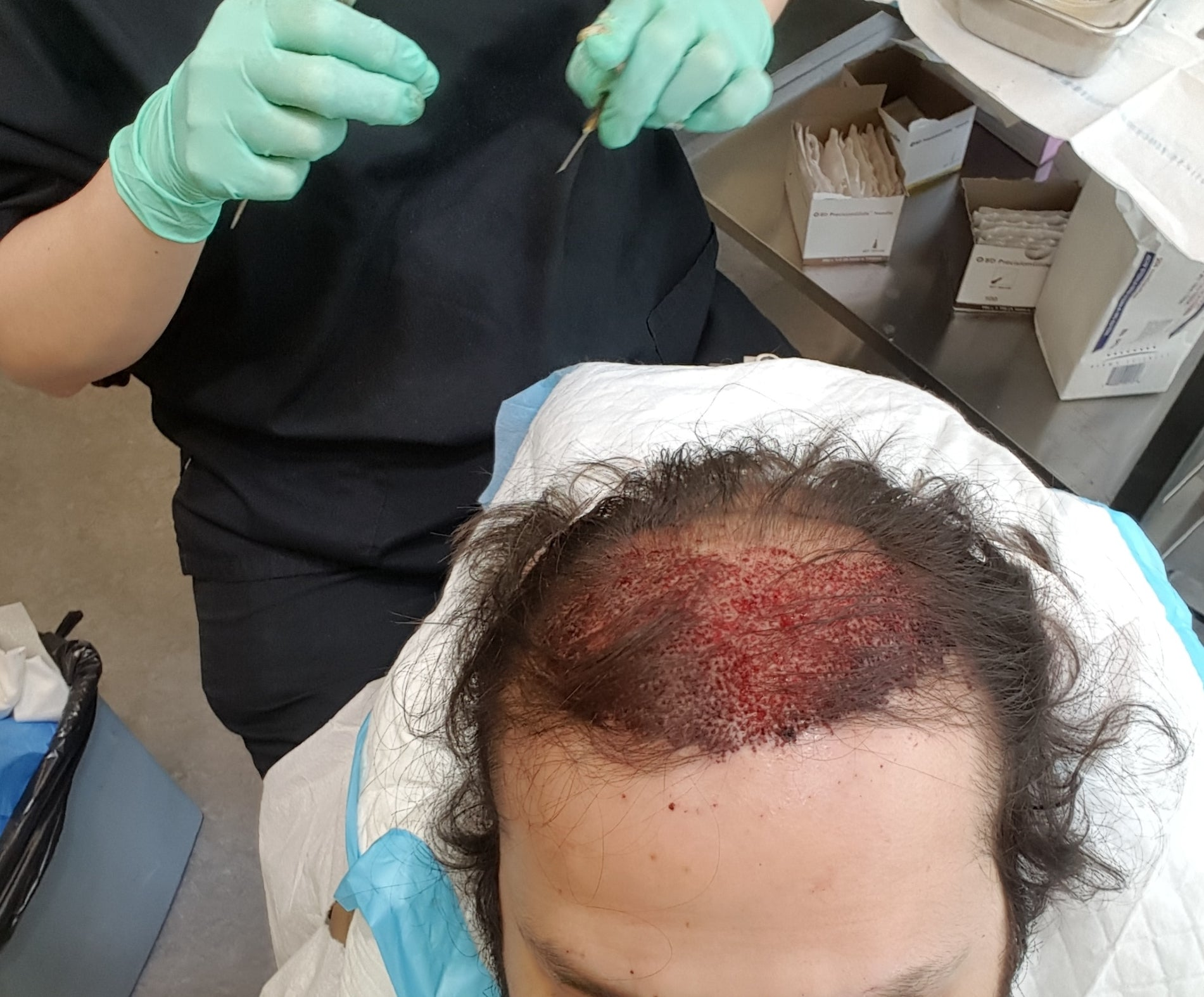 During my hair transplant