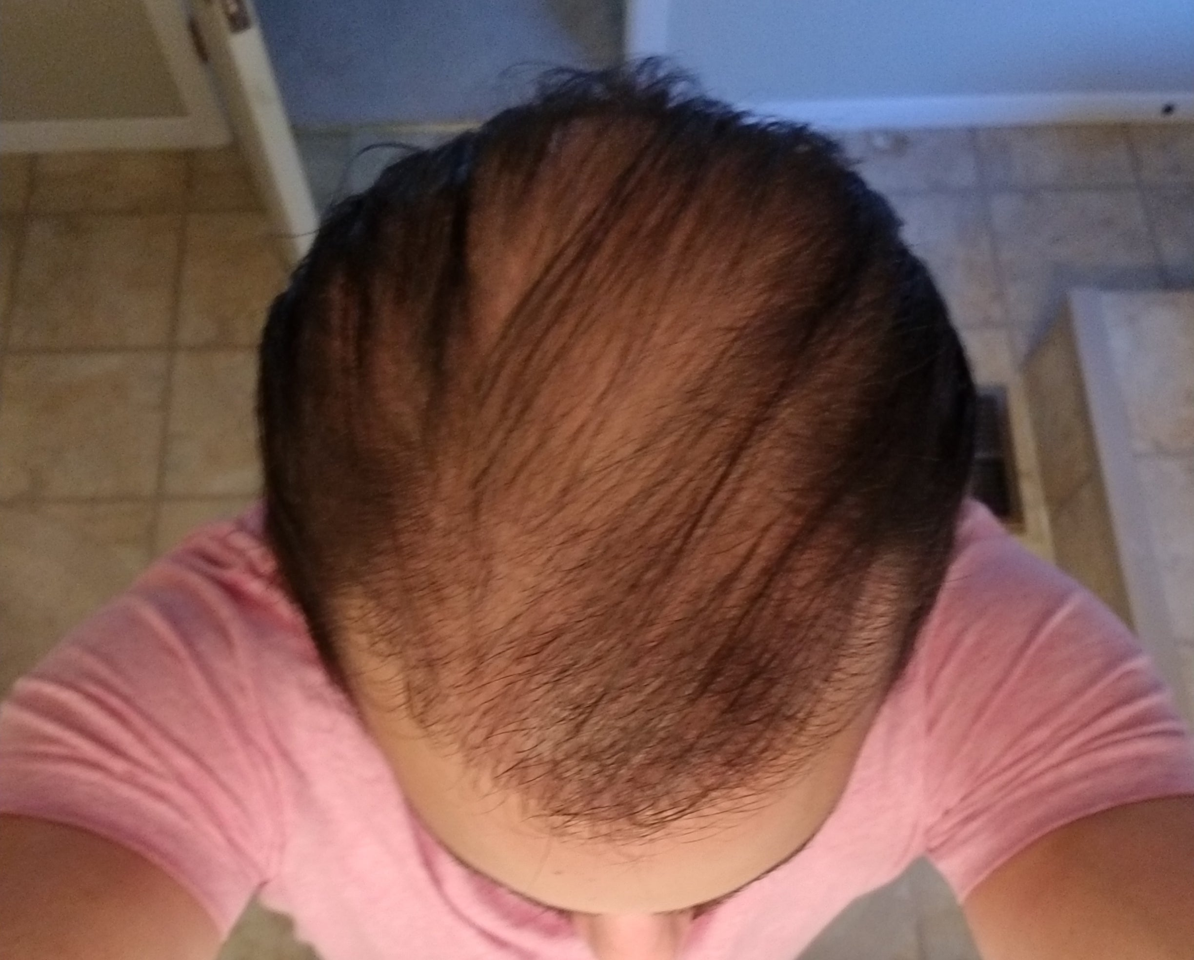 Results after hair transplant