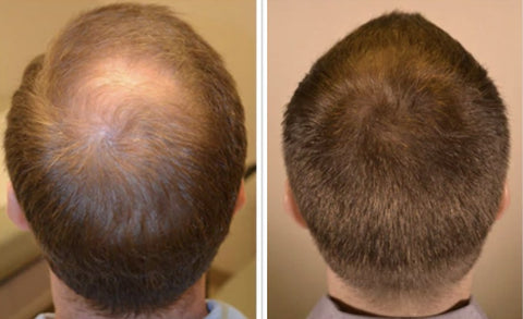 Before and after using 20 Alpha hair fibres - photo 7