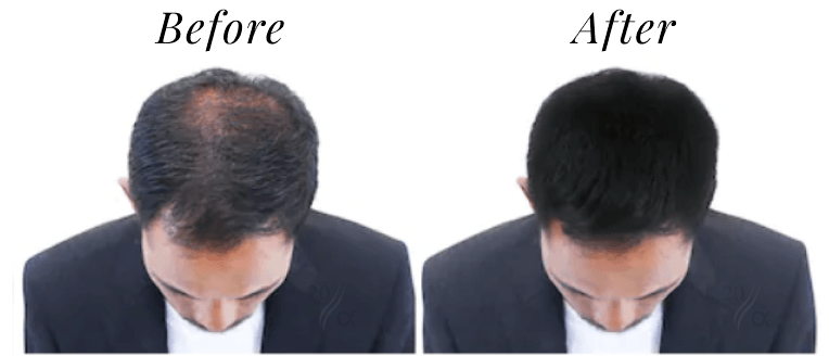 Before and after hair fiber usage photo with 20 alpha - 1