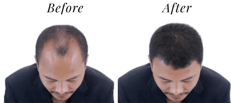 Before and after hair fiber usage photo with 20 alpha - 3