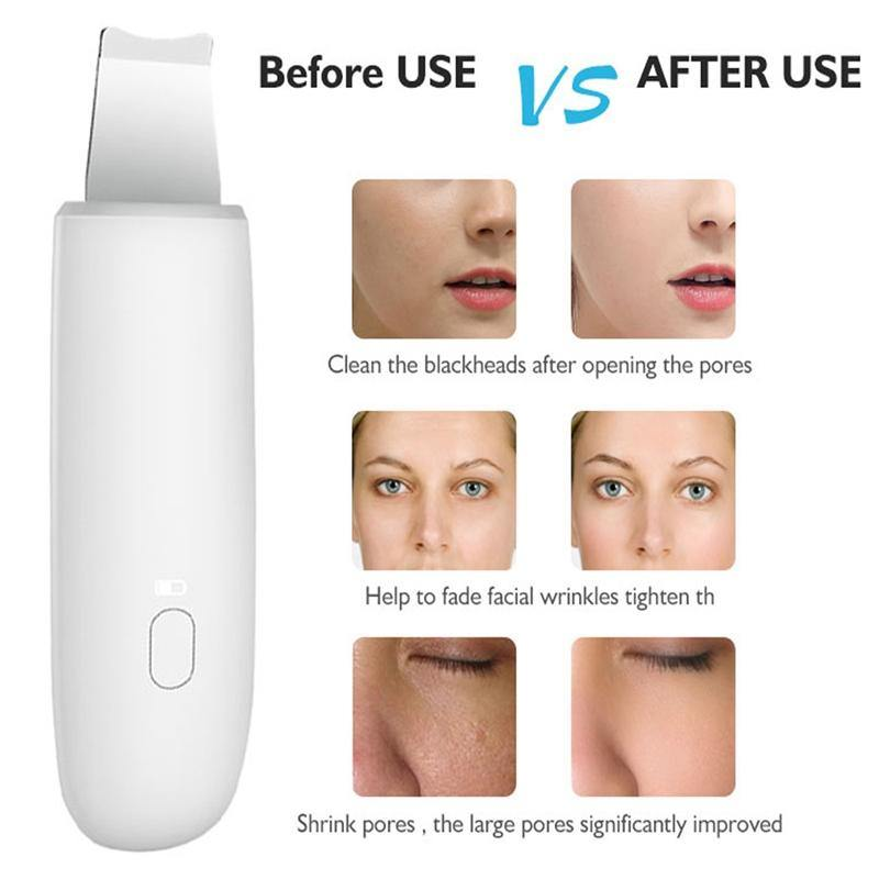 Ultrasonic Skin Deep Cleaning Face Scrubber
