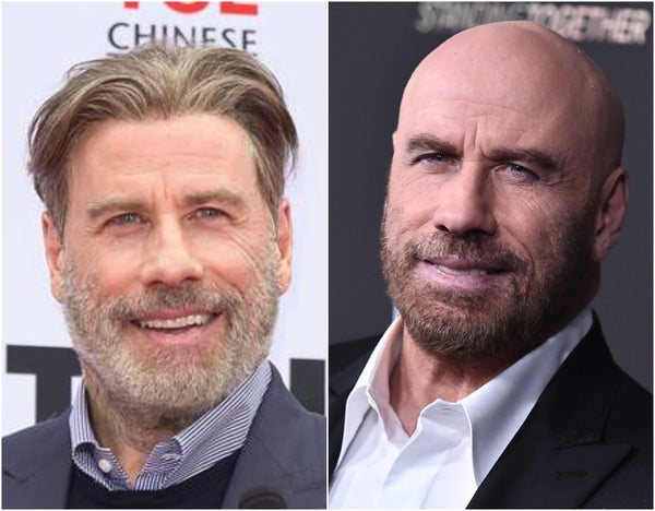 John Travolta with and without hair