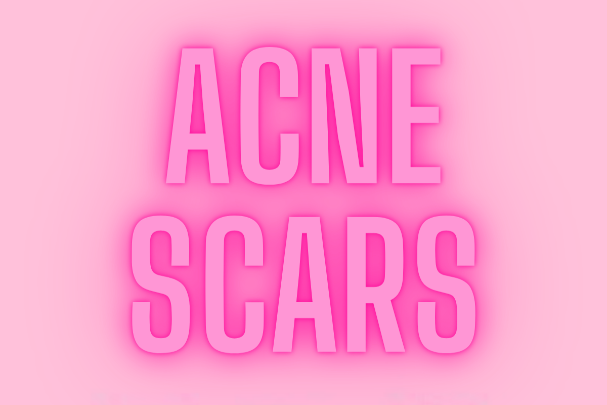 OUR QUICK, EASY GUIDE TO TREATING ACNE SCARS
