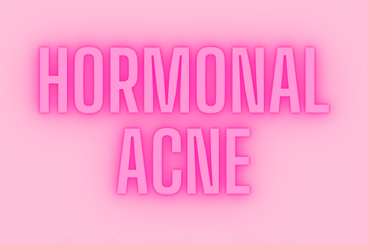 5 TIPS TO CLEAR HORMONAL ACNE