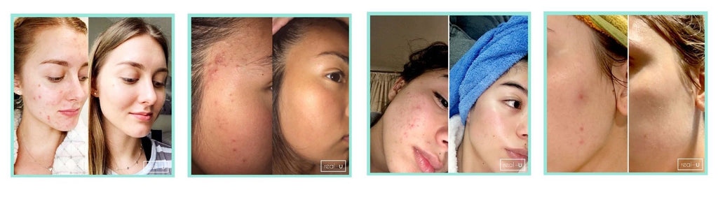 Results from the real-u Green Acne Control Serum