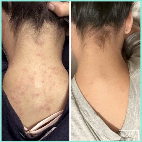 real-u before and after acne results