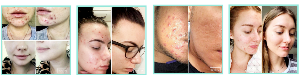 What you need to know to clear acne and pimples