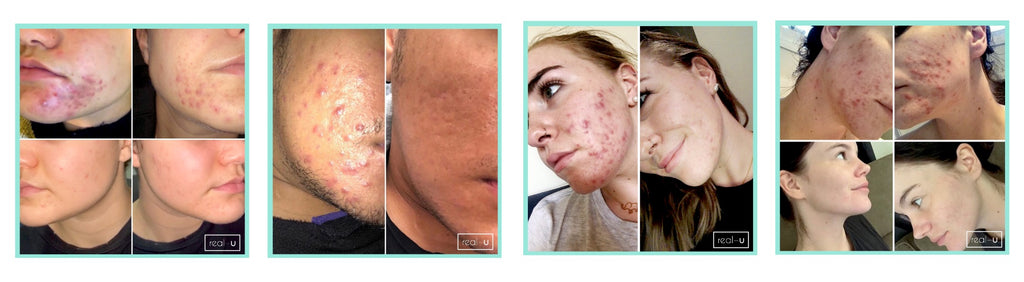 Cystic acne skincare results