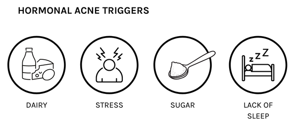 Dairy, stress, sugar and lack of sleep are 4 things that can trigger hormonal acne