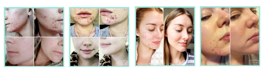 Hormonal acne skincare results grid