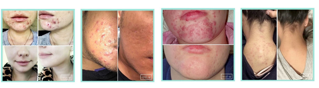 Skincare Results with red CONTROL Acne Serum