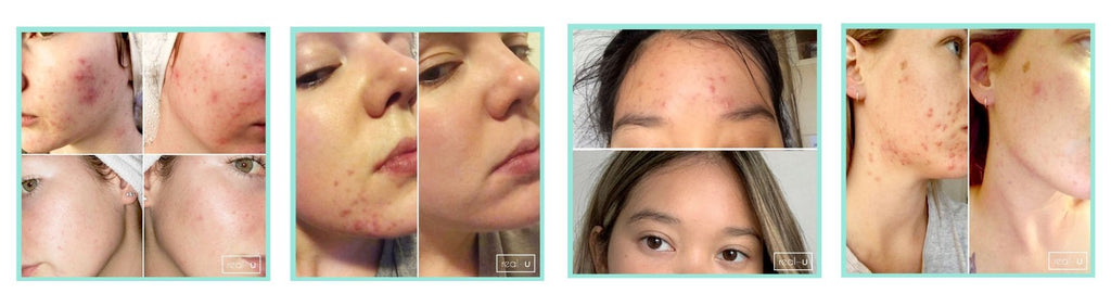 skincare results from real-u's advanced acne formula