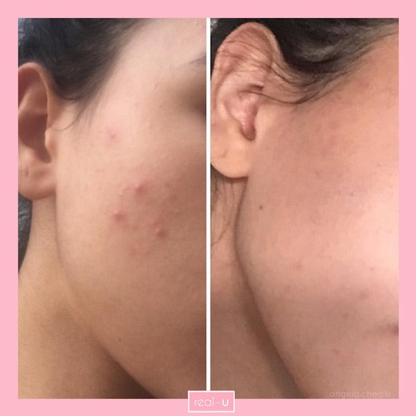 Papules - small to medium sized bumps