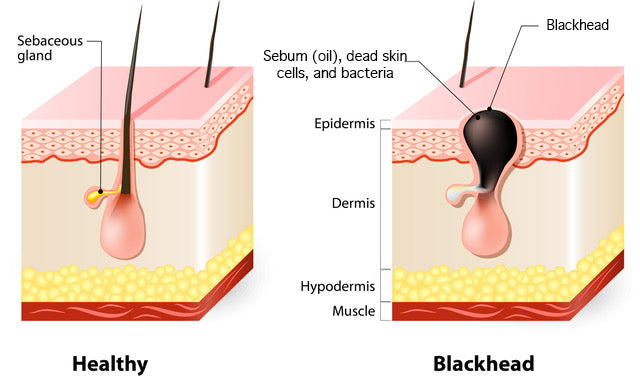 how to treat blackheads
