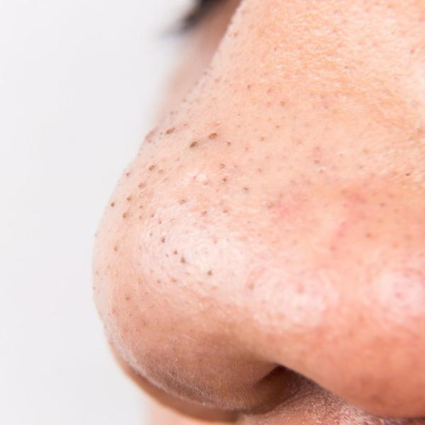 Blackheads across nose