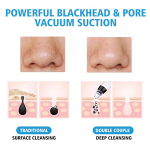 HC Blackhead Remover with Deep Blue/Red Light Therapy