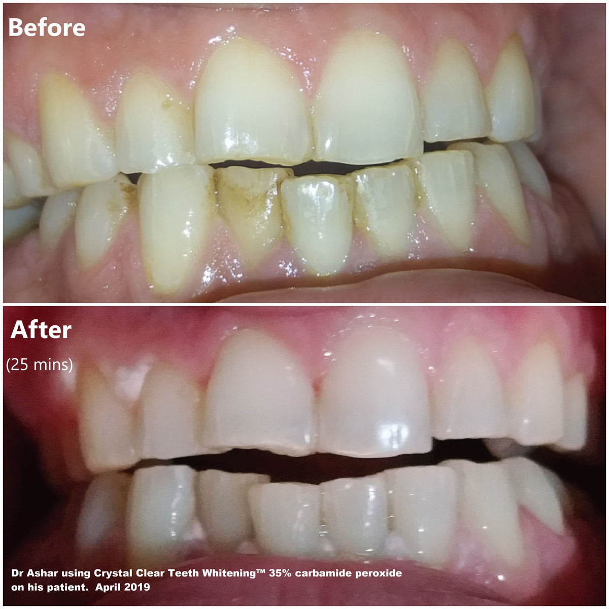 Crystal Clear Teeth Whitening Kit whitening results