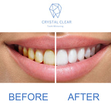 Load image into Gallery viewer, Crystal Clear Teeth Whitening Pen