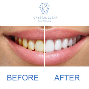 Crystal Clear Teeth Whitening Gel Refill - 3 Pack