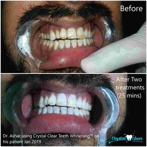 Crystal Clear Teeth Whitening™ Kit All-in-One At-Home Teeth Whitening System