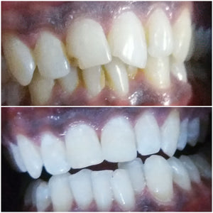 crystal clear teeth whitening results