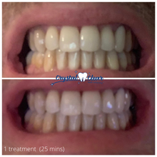 Load image into Gallery viewer, crystal clear teeth whitening results