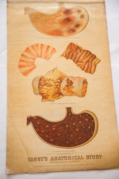 Antique 19th Century Anatomical Chart Yaggy's Intestines Delirium Tremens - Old New House