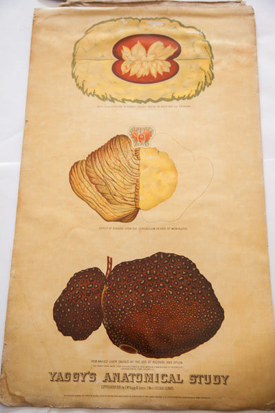 Antique 19th Century Anatomical Chart Yaggy's Stomach Opium Effects Alcohol - Old New House