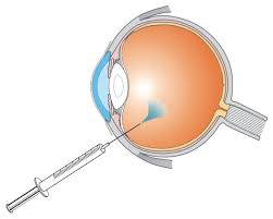 Repeated anti-VEGF injections may increase glaucoma risk