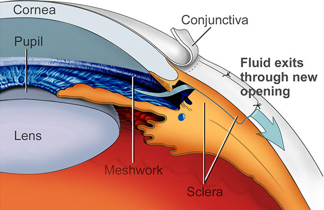 Glaucoma Surgery combined with Cataract Surgery