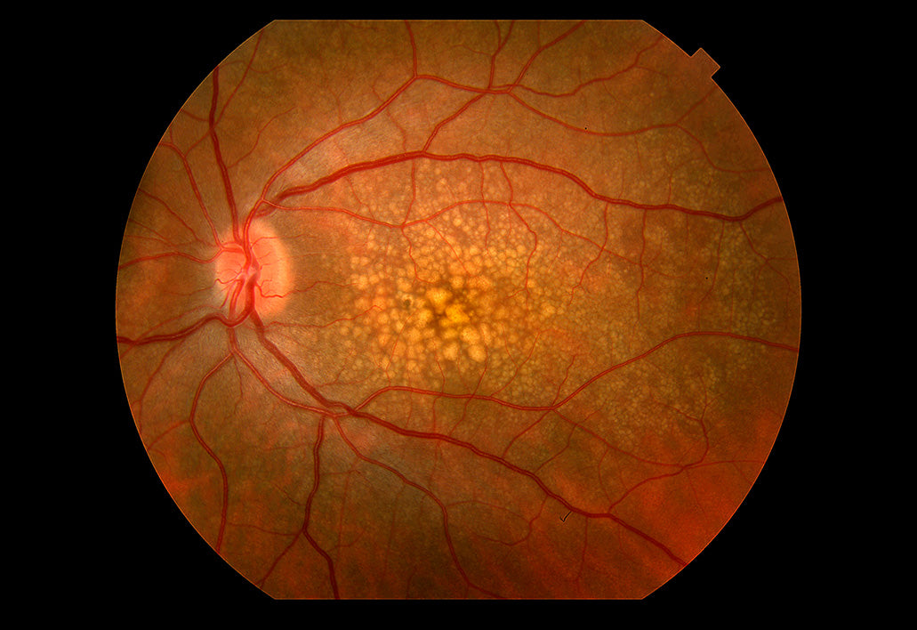 appearance of drusen in retina