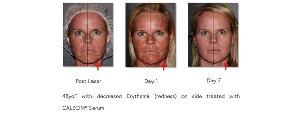 Dr. Effron on Reducing Skin Discomfort Post CO2 Laser with CALECIM® Professional