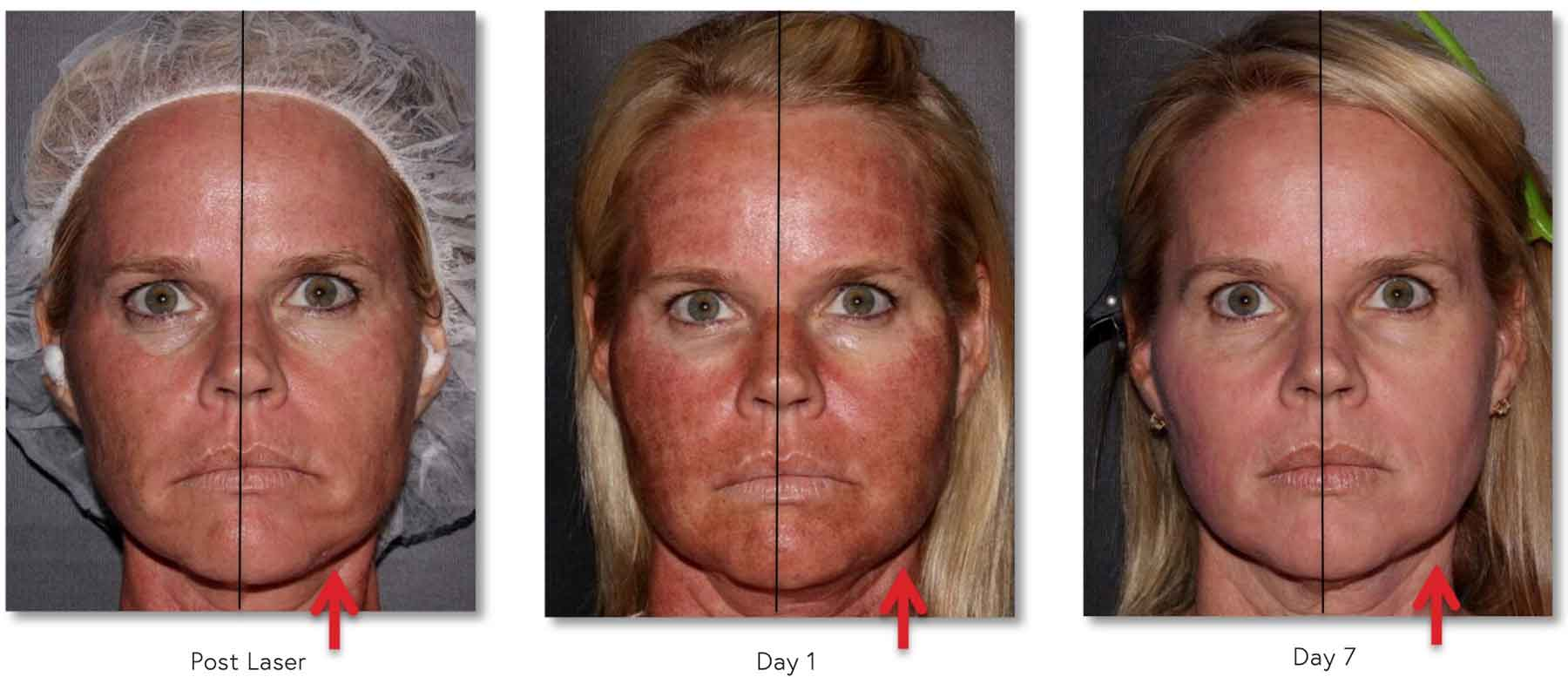 48yoF with decreased Erythema (redness) on side treated with CALECIM® Serum