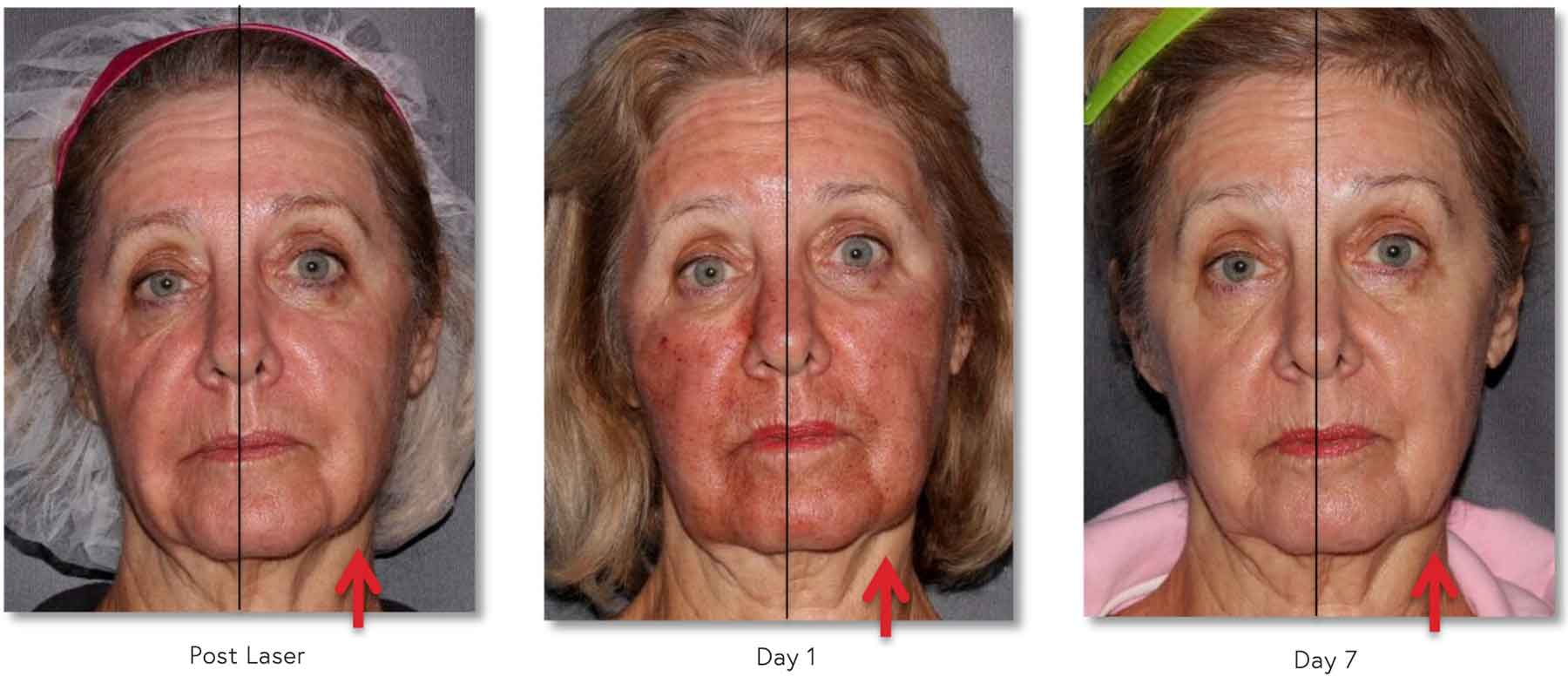 68yoF with decreased Erythema (redness) on side treated with CALECIM® Serum
