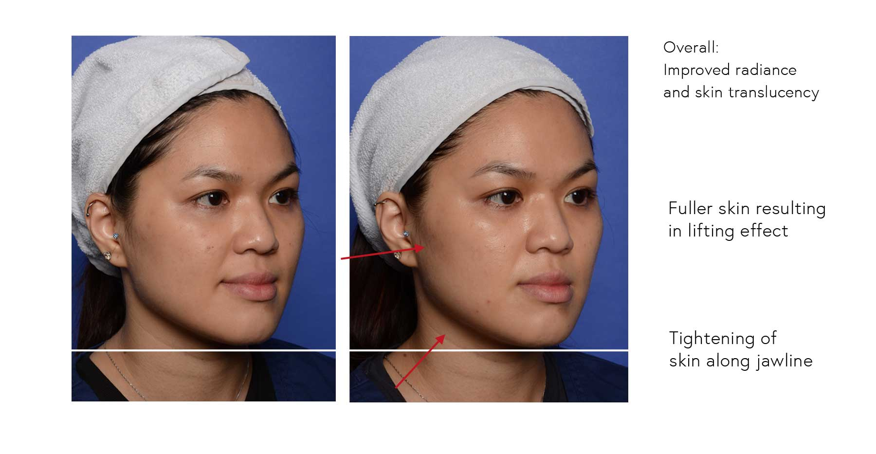 Fuller skin resulting in lifting effect; Tightening of skin along jawline; Overall improved radiance and skin translucency
