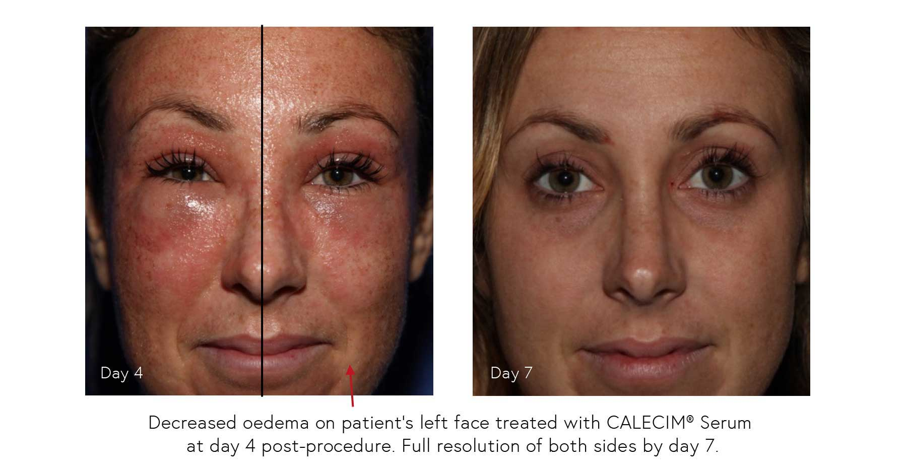 Before and After - Observations of Professional Serum used Post In-Clinic Procedure 3