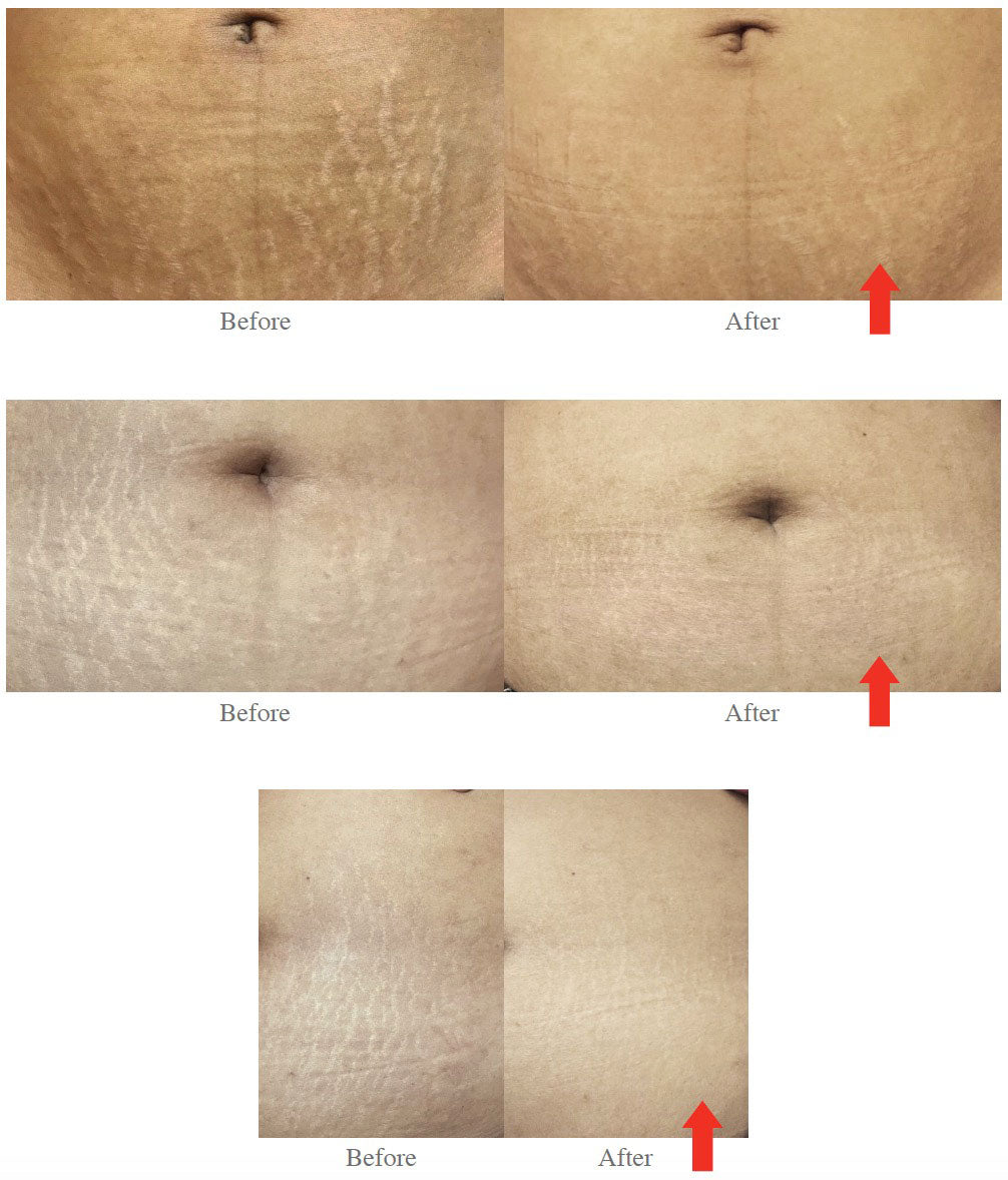 Before and After photos showing reduction in the visibility of striae distensae after a series of 3 treatments of nanofractional radiofrequency followed by the topical application of cord lining conditioned media (CLCM)