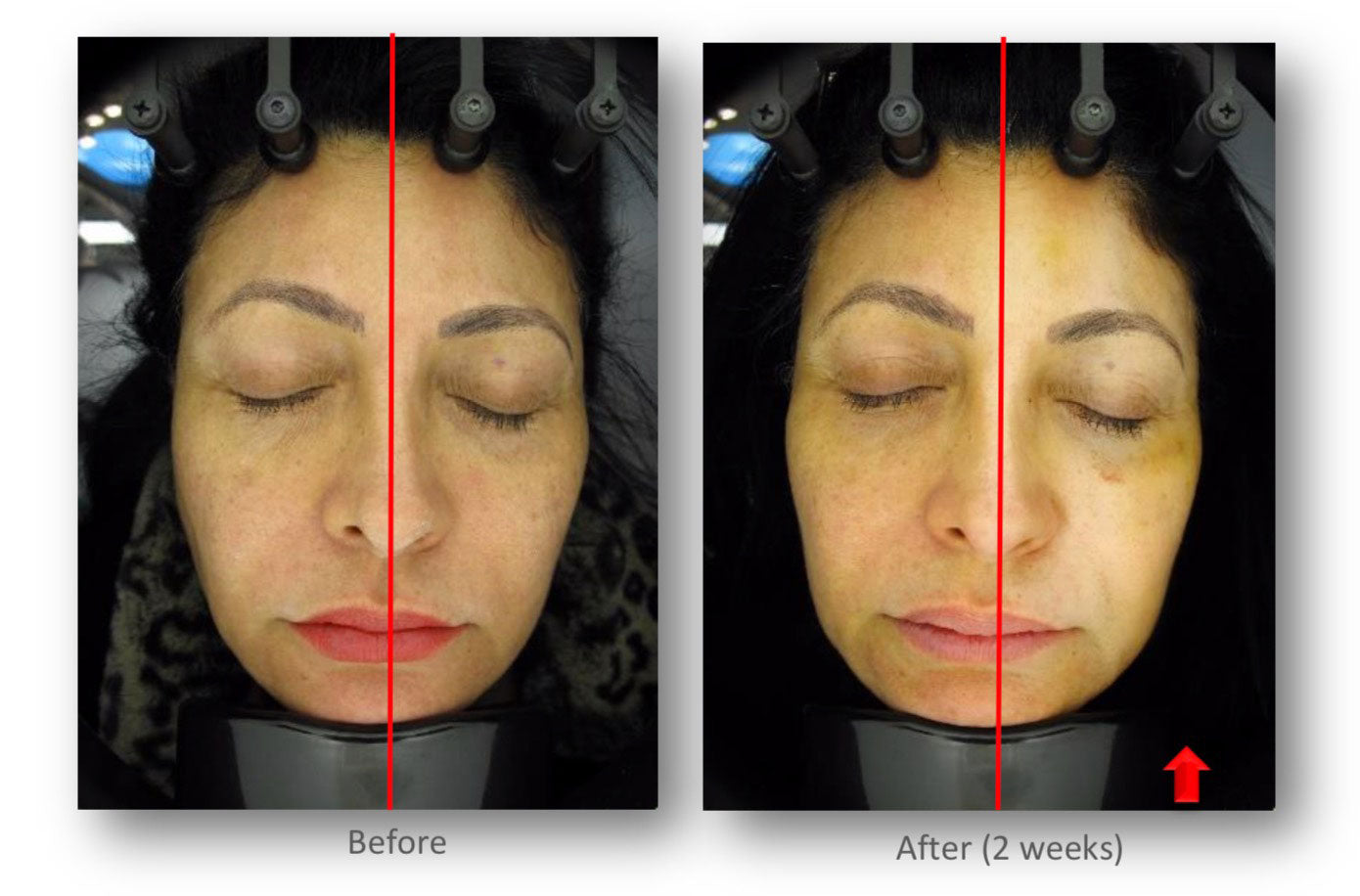 Photo on the left is before treatment and on the right 2 weeks after Patient's right side - PRP alone / patient's left side - PRP and CALECIM® Professional Serum