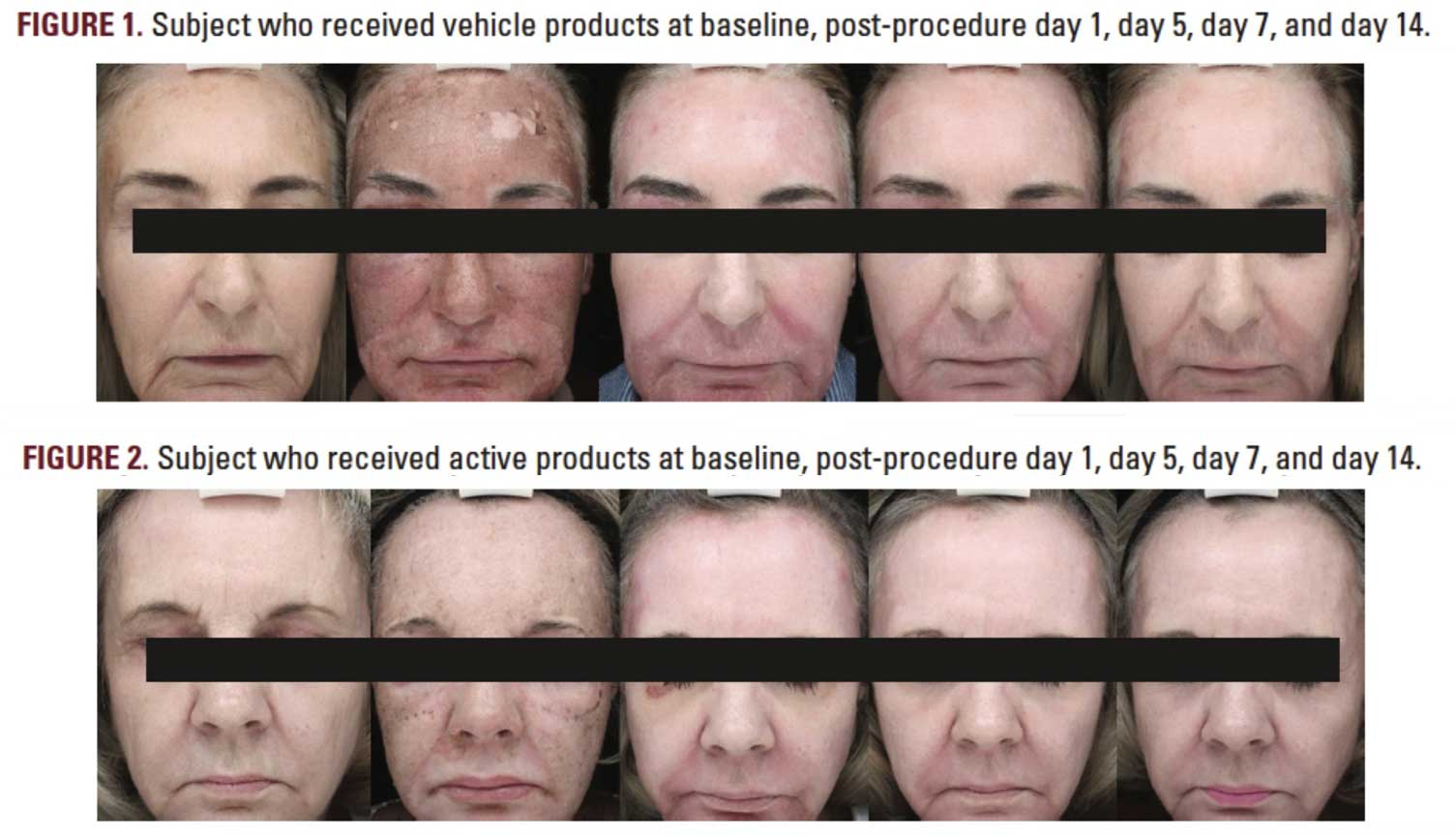 Subject who received vehicle VS active products at baseline, post-procedure day 1, day 5, day 7 and day 14